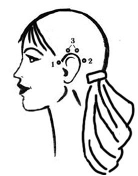 Подтяжка лица через ушные мышцы