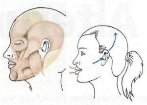 Подтяжка лица